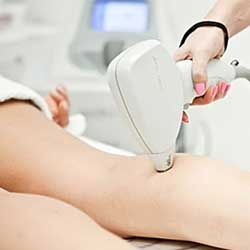 Unlimited Lightsheer Lower Legs or Upper Legs - Member Promo rate Lightsheer Permanent Hair Removal