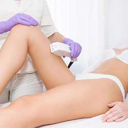 Unlimited Lightsheer Whole Legs - Member Promo Rate Lightsheer Permanent Hair Removal