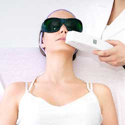 Upper Lip Painless Diode Laser Hair Removal